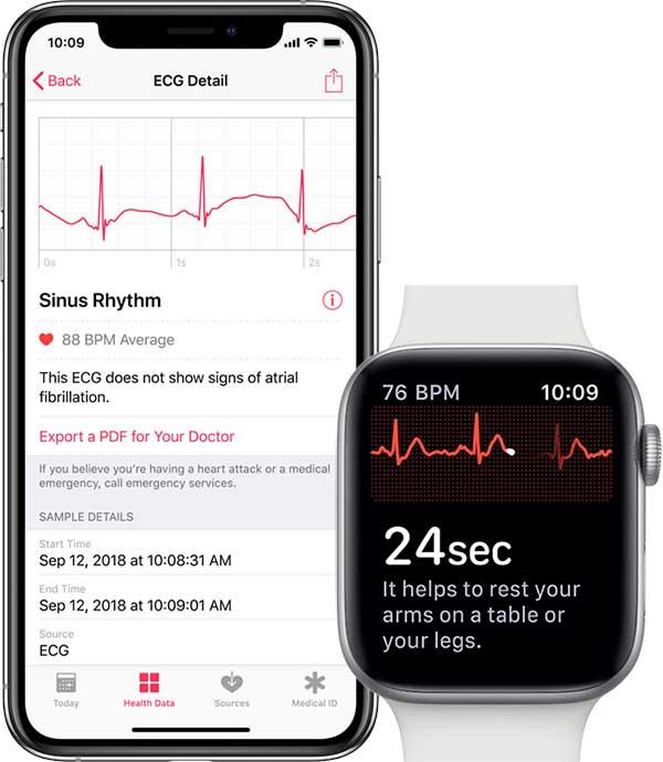 WatchOS 5.1.2 активирует функцию ЭКГ в Apple Watch Series 4