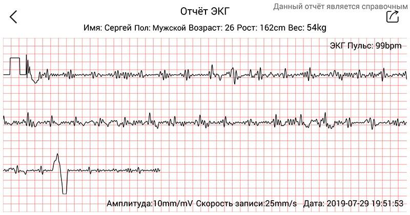 Функционал HerzBand Lite ECG