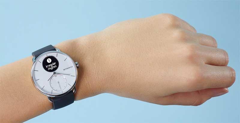 ScanWatch – гибридные смарт-часы