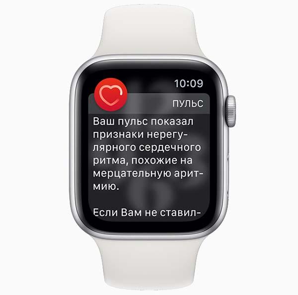 Apple Watch в России смогут снимать ЭКГ и уведомлять о нерегулярном сердечном ритме