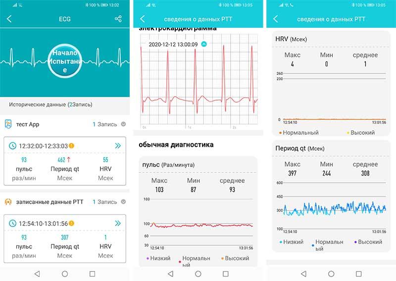 Обзор HerzBand Active ECG 3: фитнес-браслет с измерением АД, кислорода и ЭКГ 9